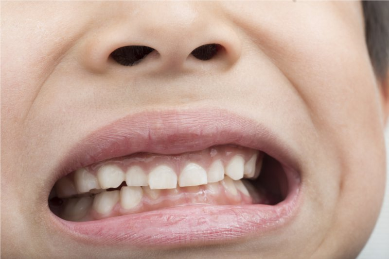 child_tooth