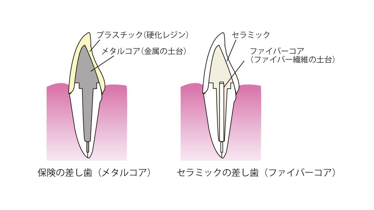 差し歯コア