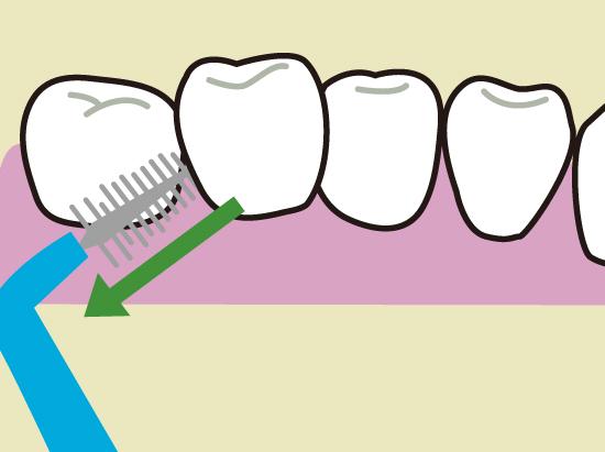 歯間ブラシの使い方3