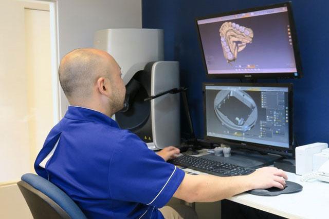 コンピュータの3D画面上で修復物を設計